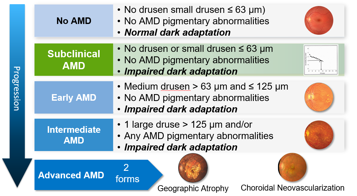 Progression of AMD from no disease to advanced disease
