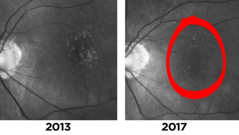 Two Cases of Disappearing Drusen in Patients with AMD